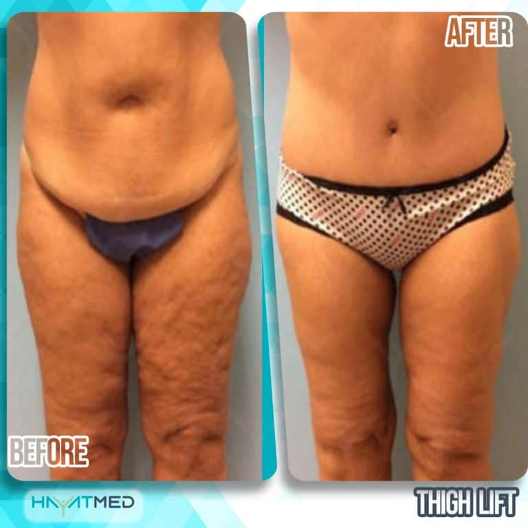 thigh lift before and after 2