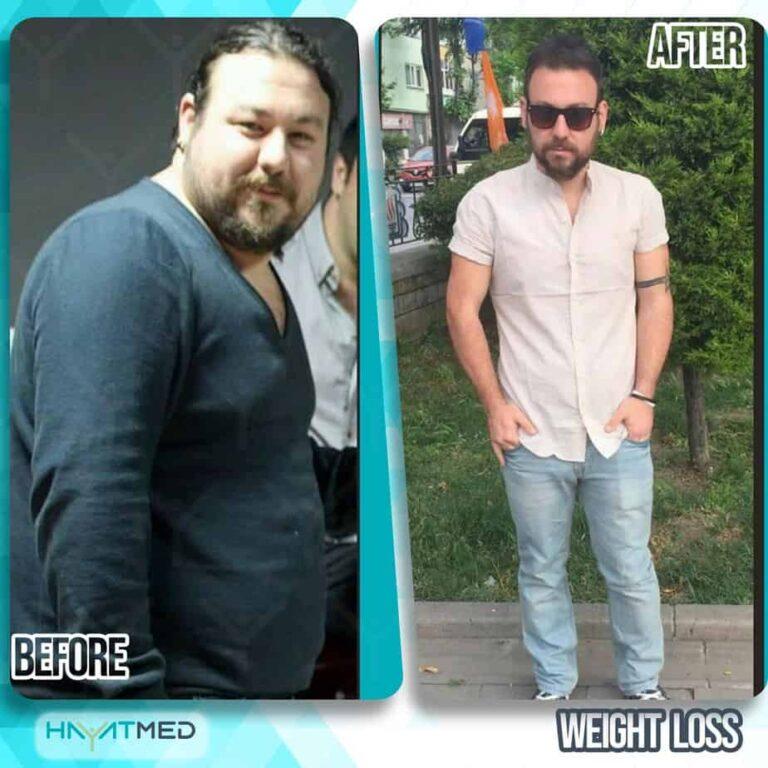 weight loss 10