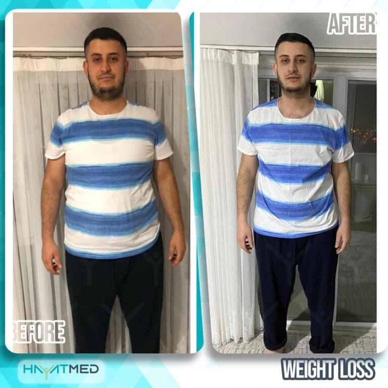 weight loss 13