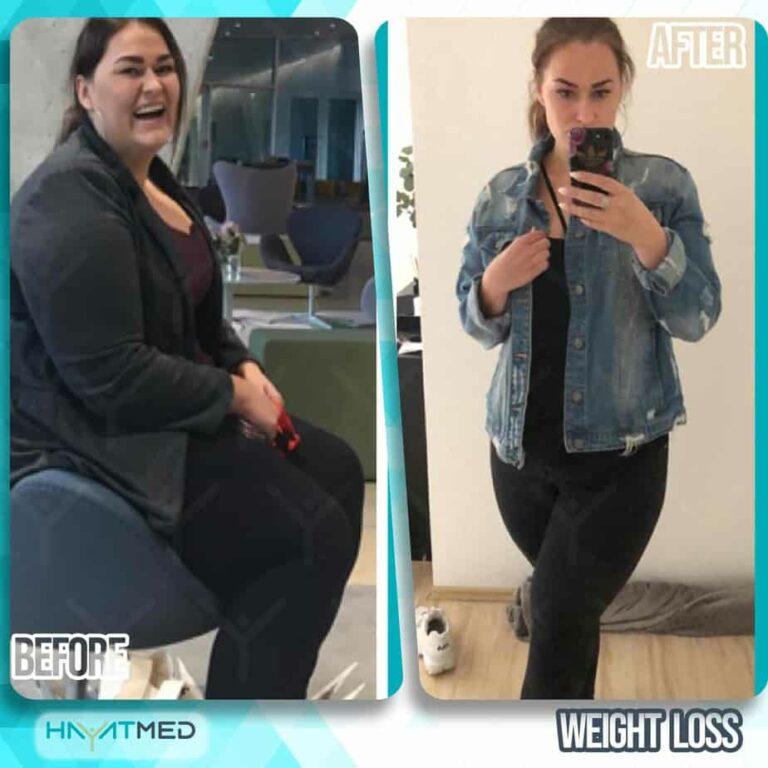 weight loss 14
