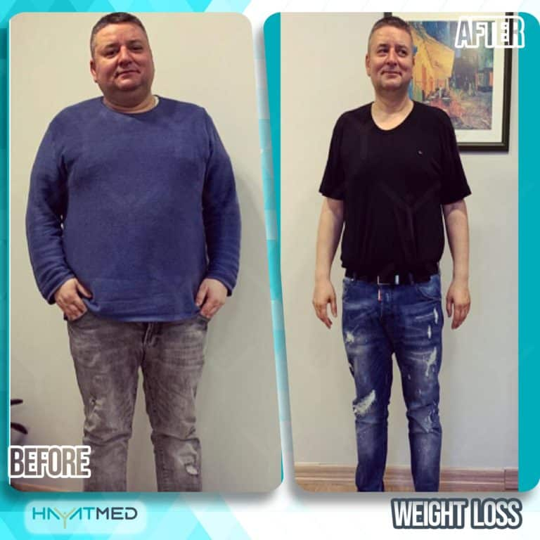 weight loss 3