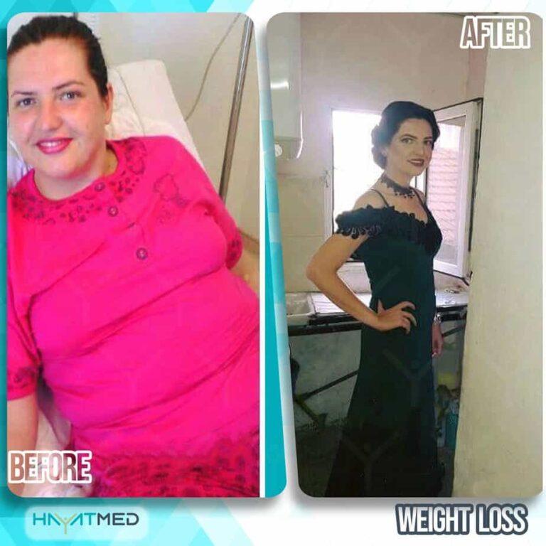 weight loss 4