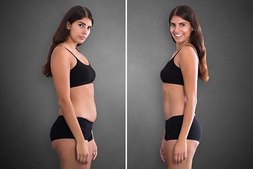 Factors that Will Affect the Cost of your Tummy Tuck