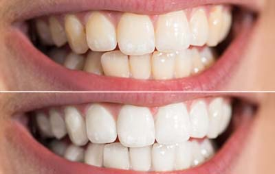 Hismile Teeth Whitening Damages The Tooth Enamel
