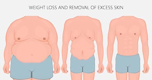 How does the tummy tuck Procedure Work