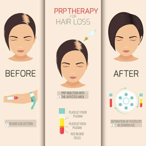 How effective is PRP Injection Hair