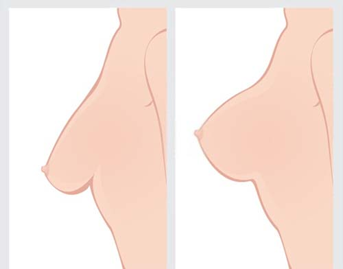 Including a Breast Lift with Implant