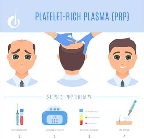 PRP injection cost