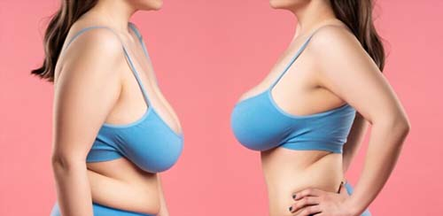 Reasons to Consider a Breast Lift and Reduction