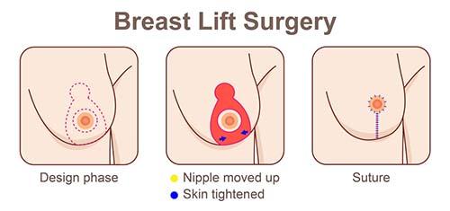 Steps of a breast lift procedure