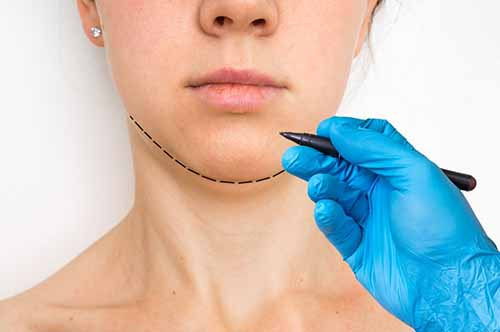 Plastic surgery doctor draw line on patient chin - cosmetic surgery concept