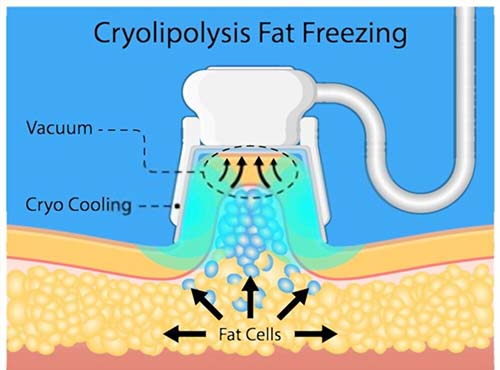 Is CoolSculpting Effective