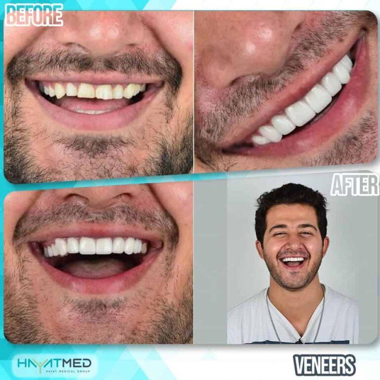 Veneers12
