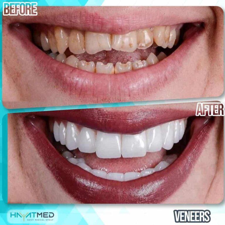 Veneers7