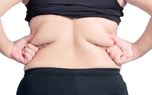 What is Back Liposuction?