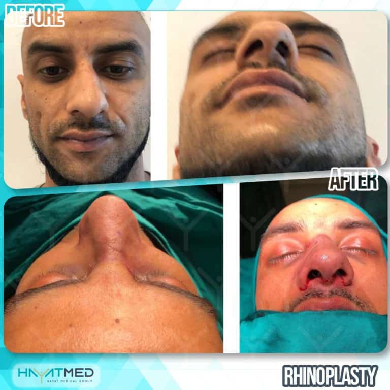 rhinoplasty 10