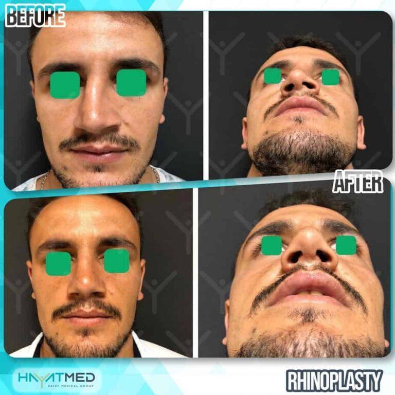 rhinoplasty 11