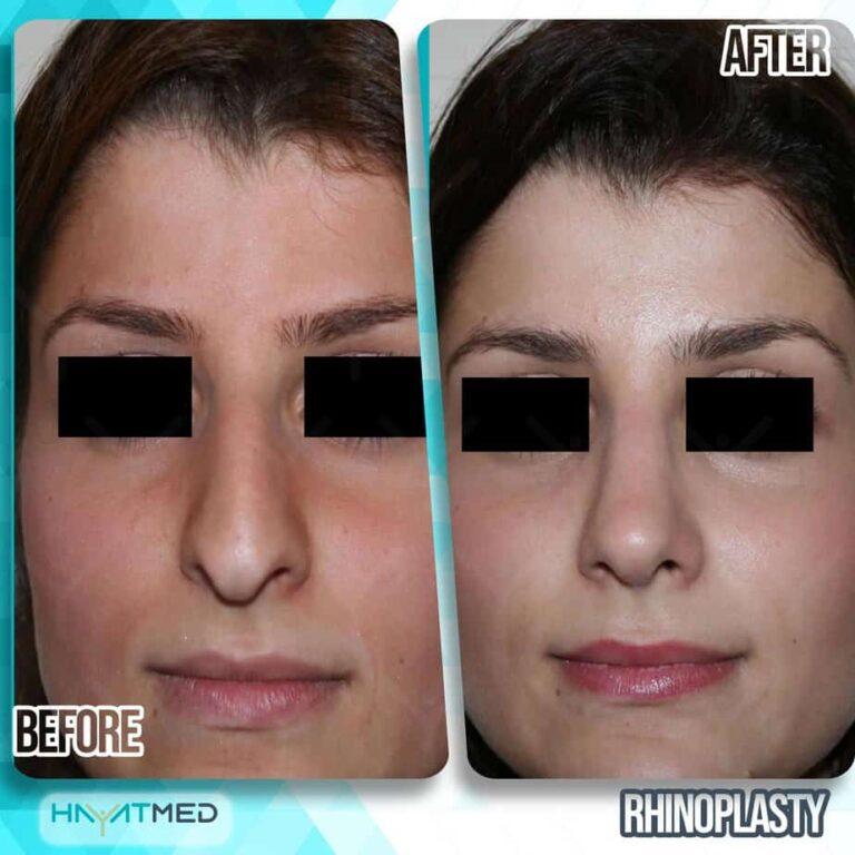 rhinoplasty 25