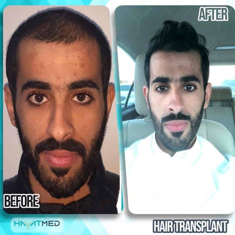 Hair transplant 111