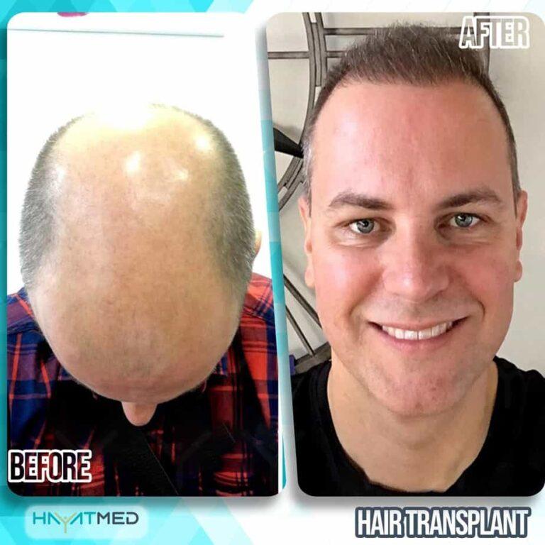 Hair transplant 2222