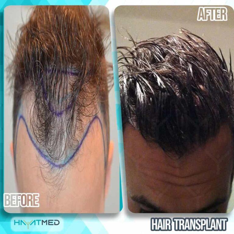 Hair transplant 3333