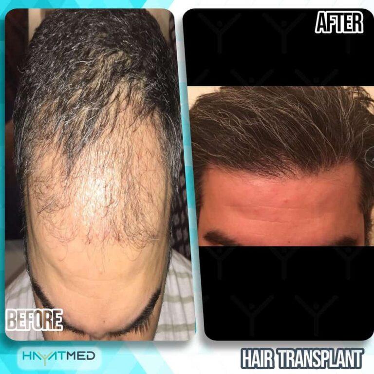 Hair transplant 4444