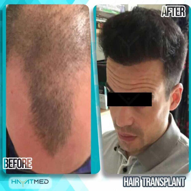 Hair transplant 5555