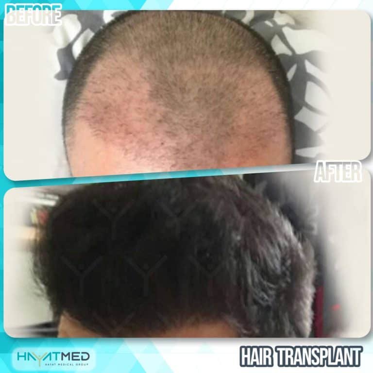 Hair transplant 6666