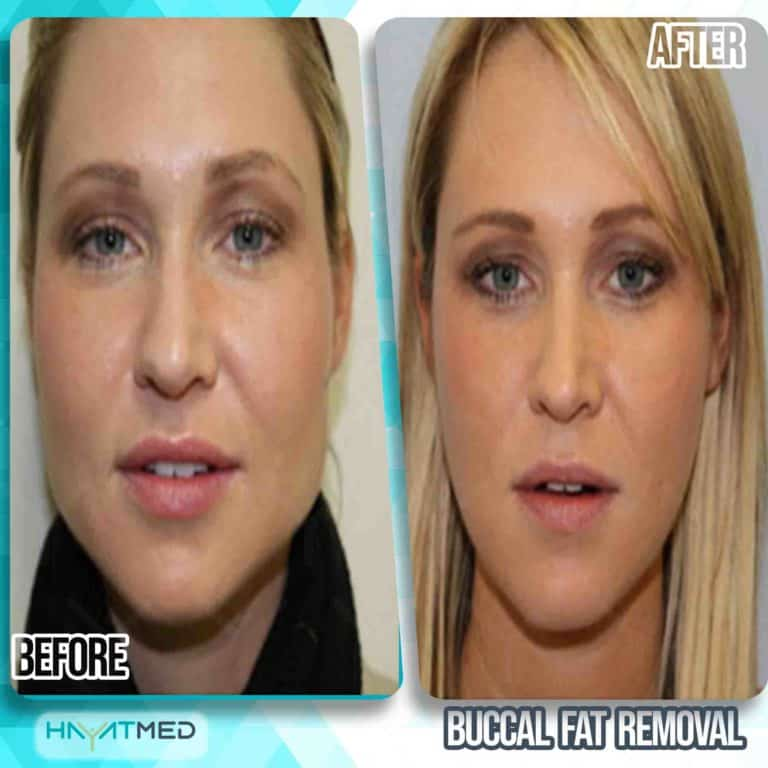 Buccal fat removal 2