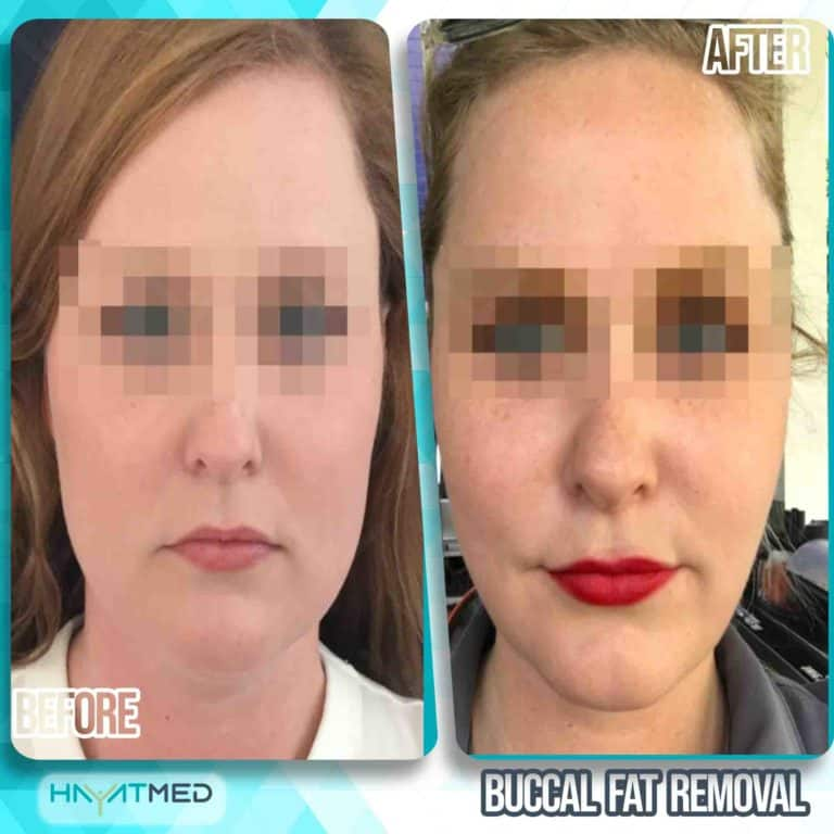 Buccal fat removal 3
