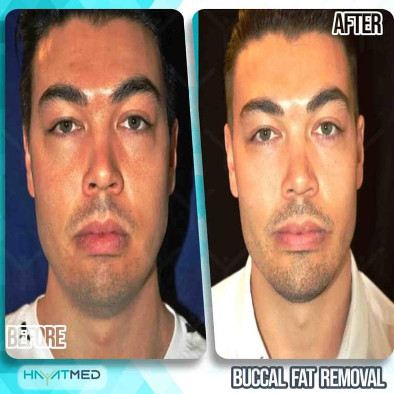 Buccal fat removal 4