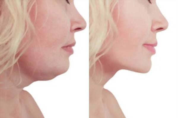 The Buccal Fat Removal Surgery