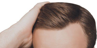 Risks and costs of FUE treatment