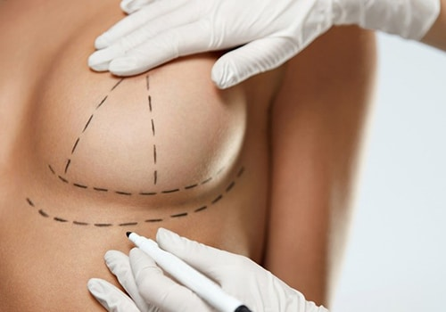 How long after breast augmentation can I fly_