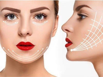What are the potential complications after the facial lift by threads?