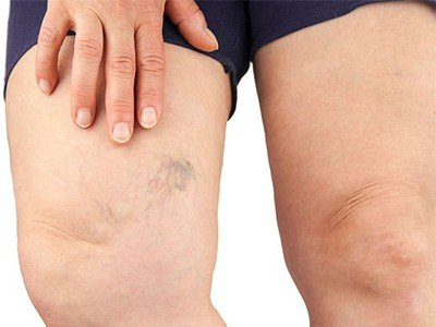 What are the factors that increase the risk of having varicose veins?