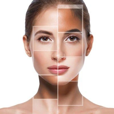 Treatments and Therapies for Skin Pigmentation