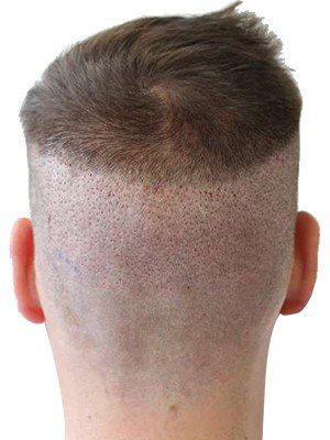 Haircut after FUE hair transplant