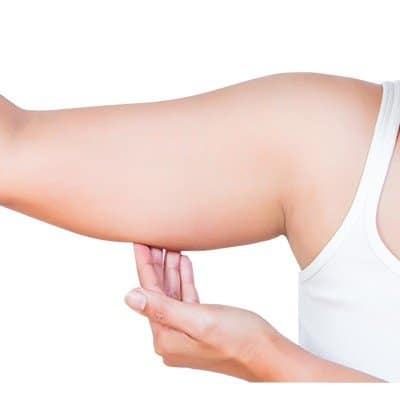 Arm Lift Surgery Recovery