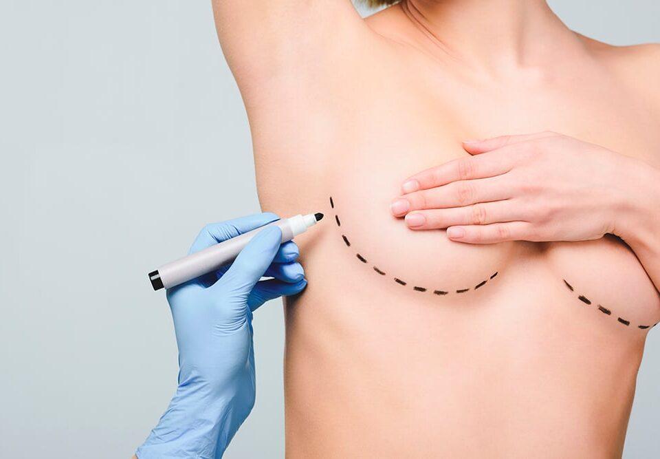 Best breast lift procedure