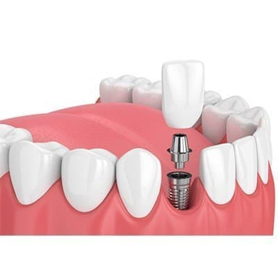 What to Expect After Dental Implants Surgery?