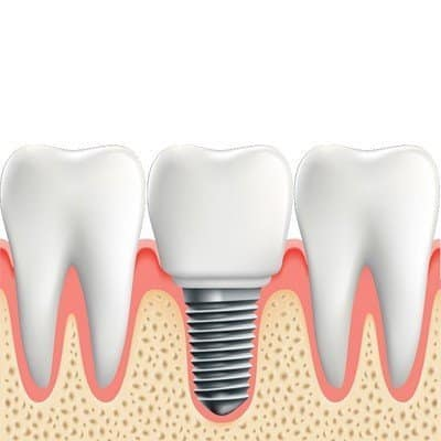 What are Features of Dental Implants?