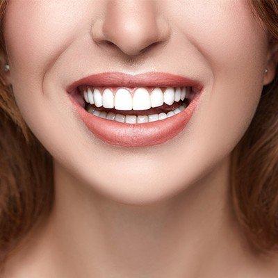 dental veeners hayat med 7 1