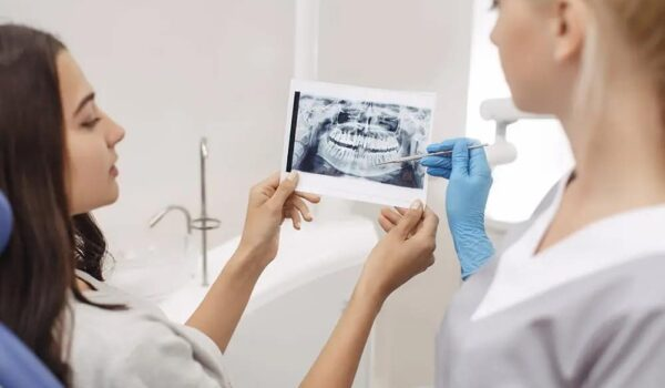 Cost for dental implants full mouth