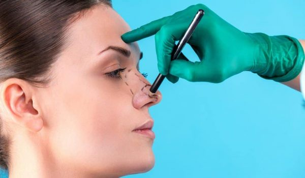 Rhinoplasty B and A