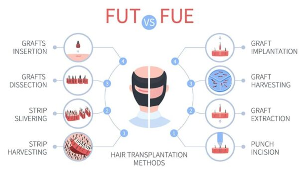 How Does a Hair Transplant Work?