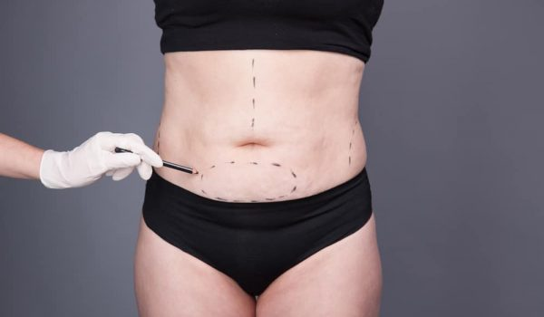 What is the cost of a tummy tuck