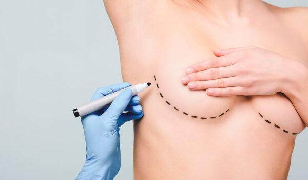 Best breast lift procedure