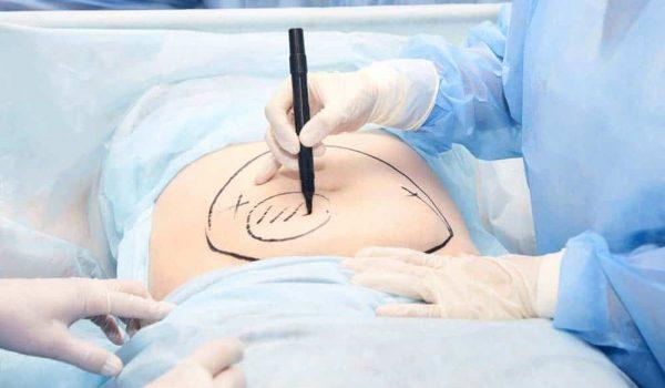 mini tummy tuck surgery