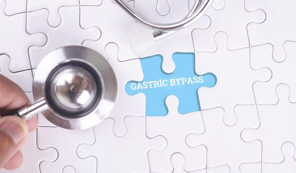 roux en y gastric bypass